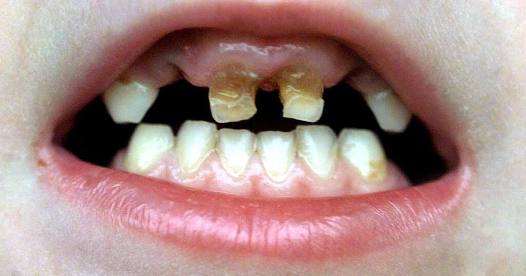 The North-South divide in our dental health